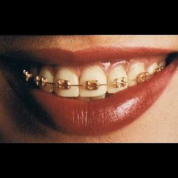 Orthos Gold